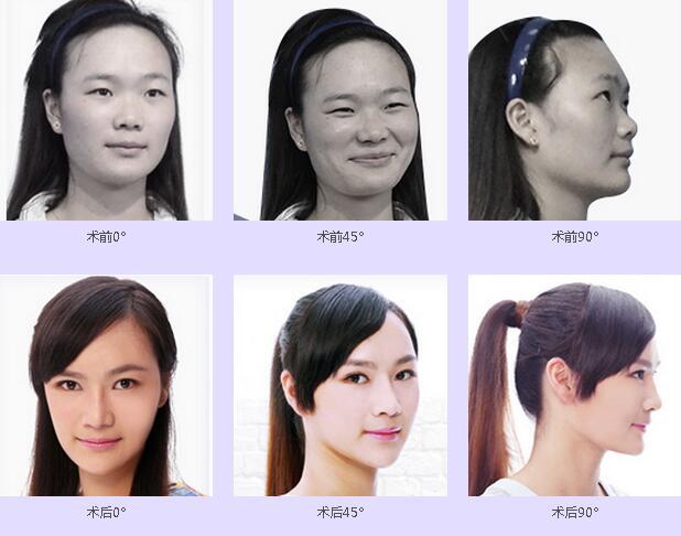 杨漂漂手术前后对比图
