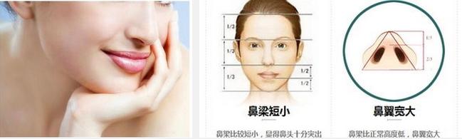 韩式隆鼻与传统隆鼻有什么区别