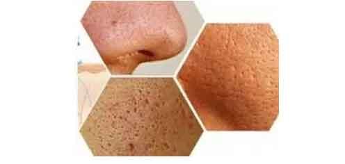 激光收缩毛孔可以维持多久