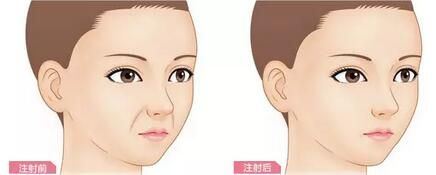 上海美莱玻尿酸填充怎么样
