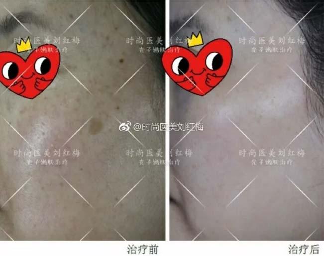 上海美莱刘红梅主任祛斑案例
