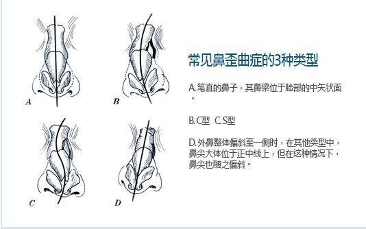 上海做歪鼻矫正大概多少钱